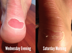 Blisters before and after